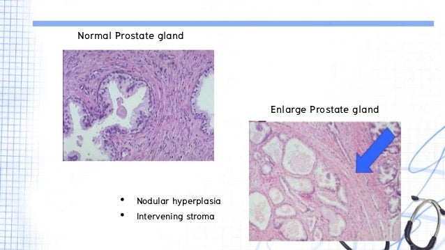 a history of the prostate gland What is the prostate what's what does my prostate do it is a small gland that is part of the age and a family history of bph are two things that increase.