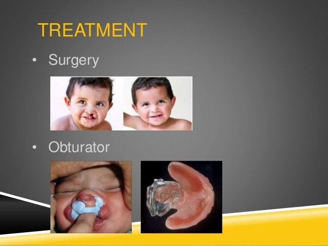 TREATMENT • Surgery • Obturator
