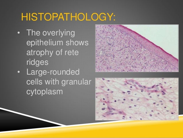 HISTOPATHOLOGY: • The overlying epithelium shows atrophy of rete ridges • Large-rounded cells with granular cytoplasm