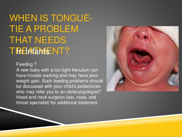 WHEN IS TONGUE- TIE A PROBLEM THAT NEEDS TREATMENT?In Infants Feeding ? A new baby with a too tight frenulum can have trou...