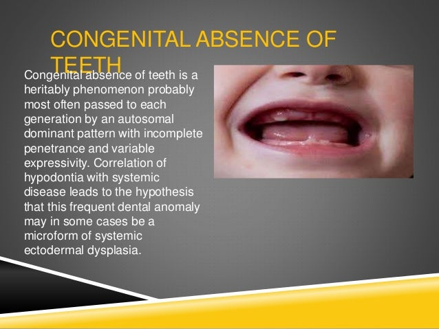 CONGENITAL ABSENCE OF TEETHCongenital absence of teeth is a heritably phenomenon probably most often passed to each genera...