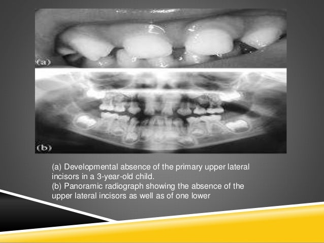 (a) Developmental absence of the primary upper lateral incisors in a 3-year-old child. (b) Panoramic radiograph showing th...