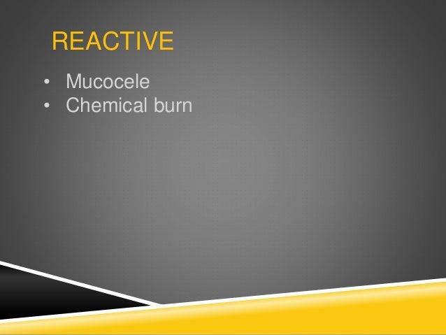 REACTIVE • Mucocele • Chemical burn