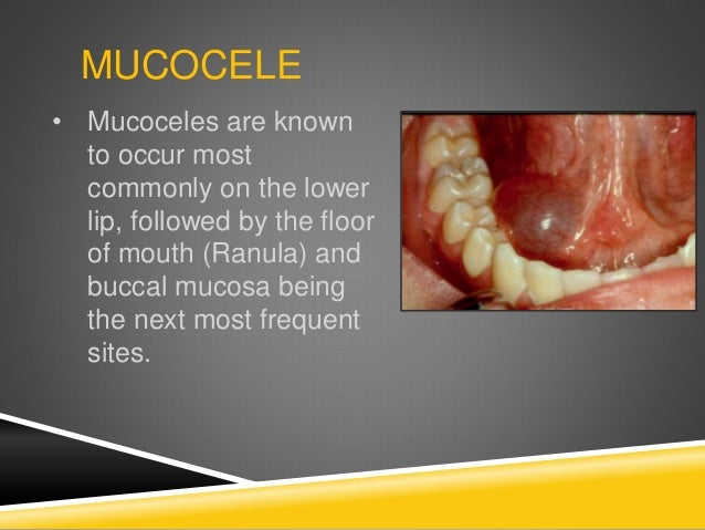 Summary  Pediatric Oral Pathology