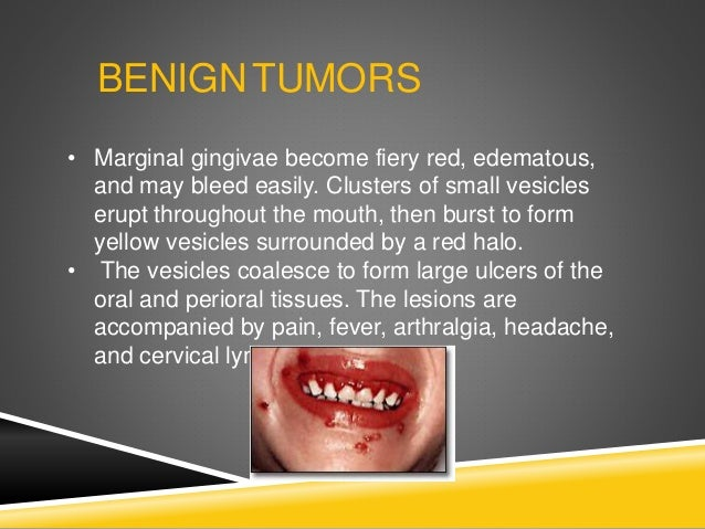 BENIGNTUMORS • Marginal gingivae become fiery red, edematous, and may bleed easily. Clusters of small vesicles erupt throu...