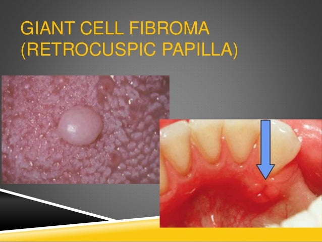 GIANT CELL FIBROMA (RETROCUSPIC PAPILLA)