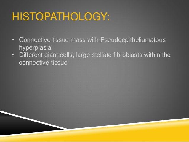 HISTOPATHOLOGY: • Connective tissue mass with Pseudoepitheliumatous hyperplasia • Different giant cells; large stellate fi...