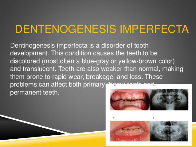 Type I: Type of dentinogenesis imperfecta with similar dental abnormalities usually an autosomal dominant trait with varia...
