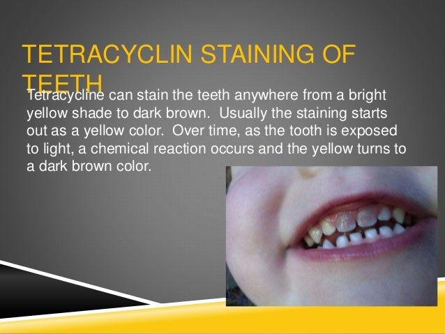 DRUGS THAT CAUSE STAINING OF TEETH Many of tetracycline's homologues (similar drugs) are all associated with discoloration...