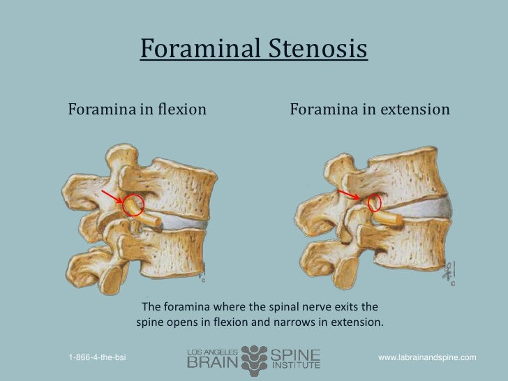 central canal stenosis - Akba.greenw.co
