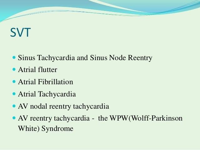 What Is Svt >> Supra Ventricular Tachycardia