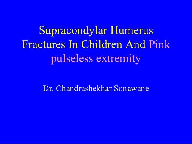 Supracondylar Humerus Fractures In Children And Pink pulseless extremity Dr. Chandrashekhar Sonawane
