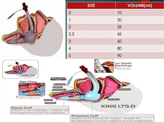 Supraglottic airway device