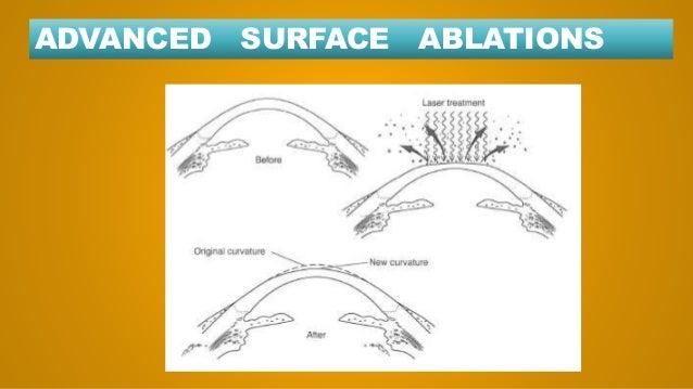 Surface Ablation Prk Lasik Smile