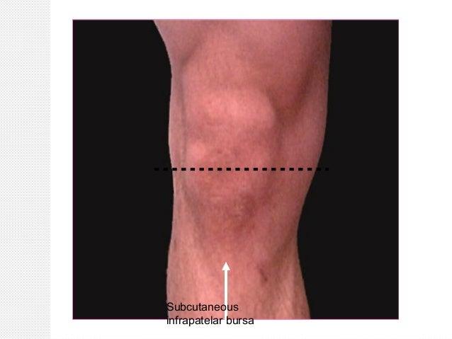 Surface Anatomy Of Lower Limb