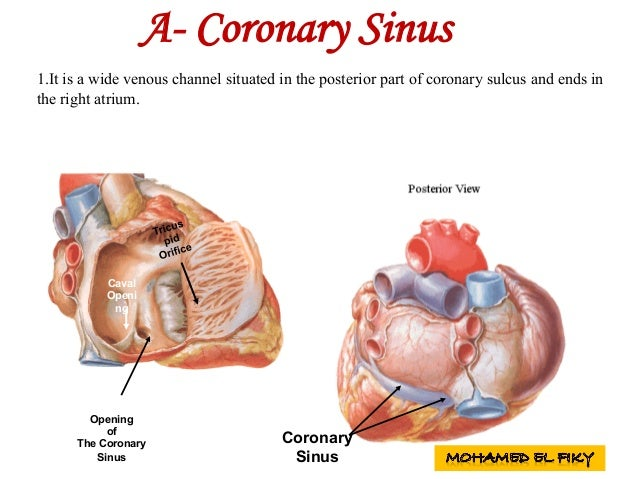 Coronary Sinus Opening of The Coronary Sinus Caval Openi ng A- Coronary Sinus 1.It is a wide venous channel situated in th...