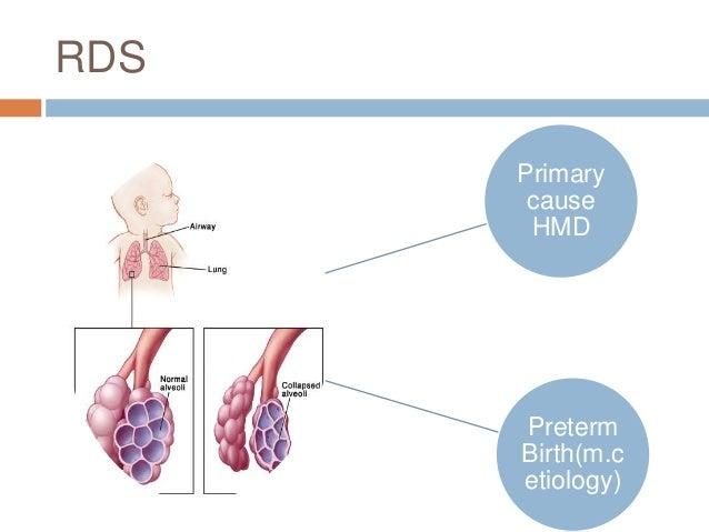 Respiratory Distress Syndrome (RDS) in Preterm Neonates