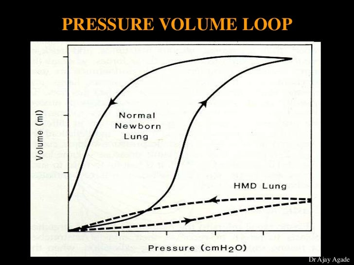 when surfactant is added what happens to the tidal volume What happens as a result  when surfactant is added to water,  three volumes can be measured— the tidal volume and the inspiratory and expiratory reserve.