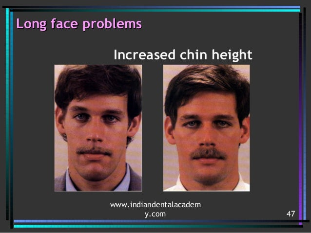 Surgery /certified fixed orthodontic courses by Indian ...