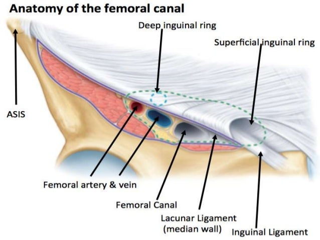 Surgery case presentation. femoral hernia.