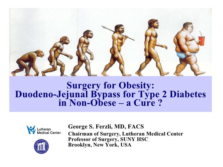 Surgery for Obesity: Duodeno-Jejunal Bypass for Type 2 Diabetes in Non-Obese – a Cure ? George S. Ferzli, MD, FACS Chairma...
