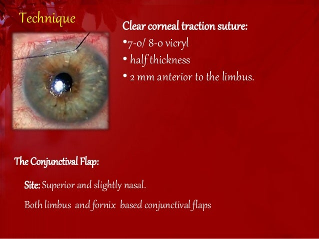 Surgery In Open Angle Glaucoma