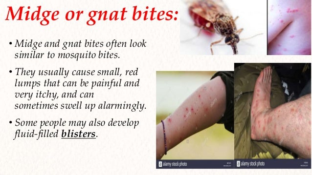 Surgery Insects Bites