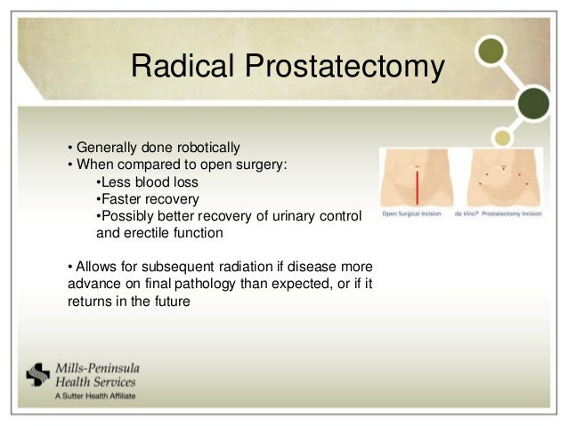 Surgery Radiation Therapy Or Neither Evolving Approaches
