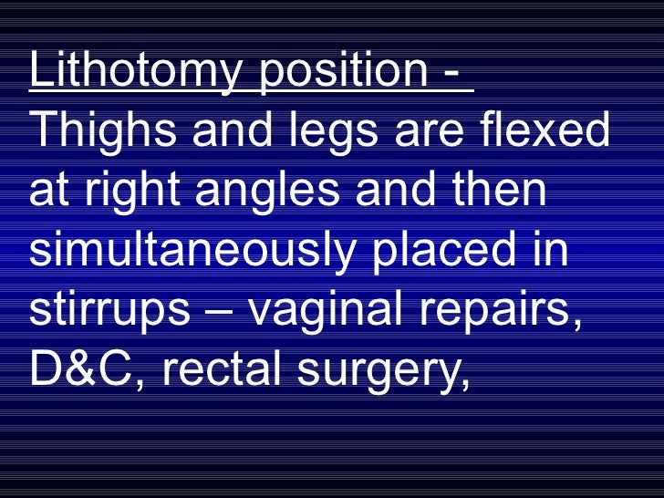 Lithotomy position -  Thighs and legs are flexed at right angles and then simultaneously placed in stirrups – vaginal repa...