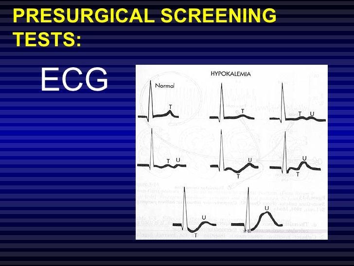 PRESURGICAL SCREENING TESTS: ECG