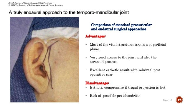 Surgical Approaches To Tmj