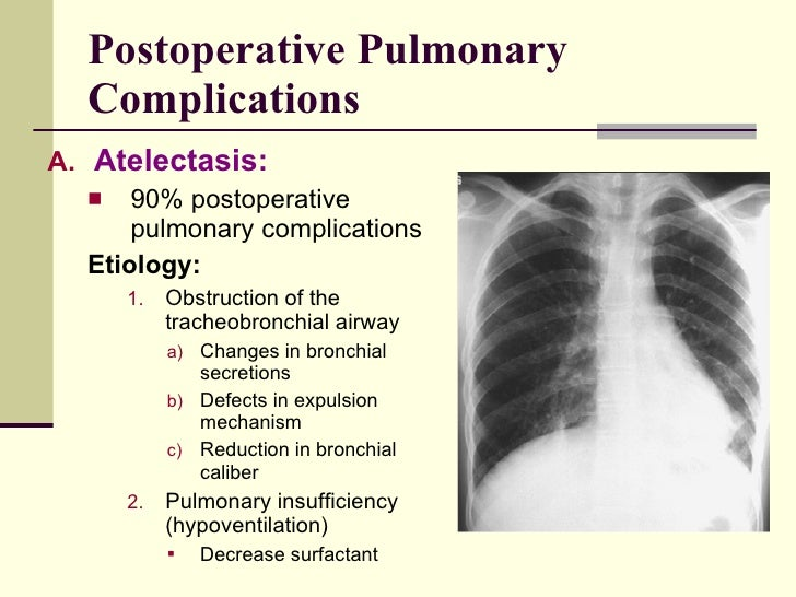 postoperative pulmonary complications Postoperative pulmonary complications (ppc) in patients with pulmonary diseases remain to be resolved clinical issue however, most evidence regarding ppc has been established more than 10 years ago.
