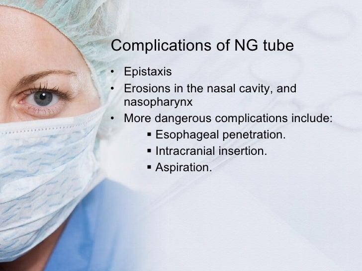 Complications of NG tube <ul><li>Epistaxis </li></ul><ul><li>Erosions in the nasal cavity, and nasopharynx </li></ul><ul><...