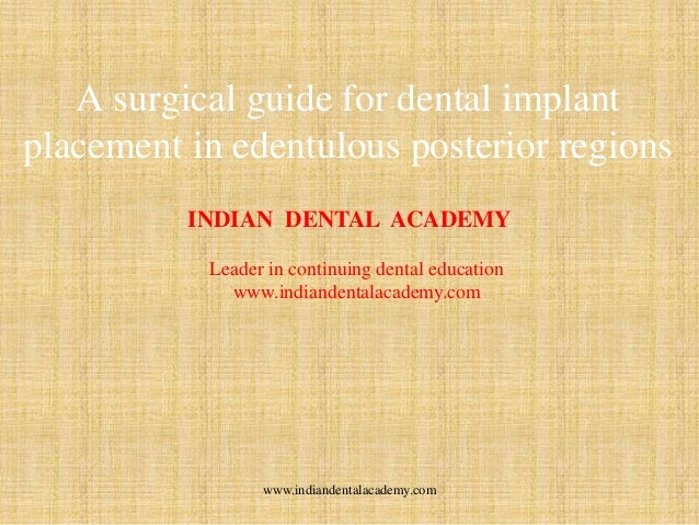 A surgical guide for dental implant placement in edentulous posterior regions INDIAN DENTAL ACADEMY Leader in continuing d...