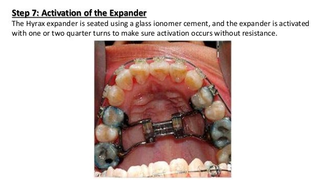 Surgically Assisted Rapid Palatal Expansion (SARPE)