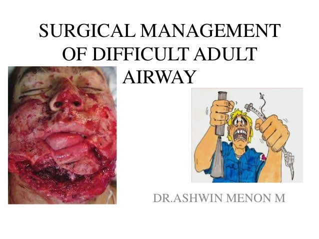 Surgical management of difficult adult airway by Dr.Ashwin Menon Slide 2