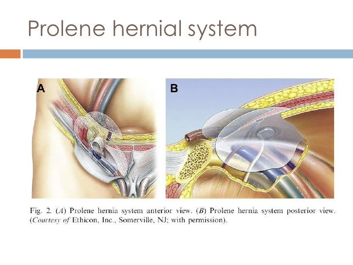 Surgical Options In The Management Of Hernia Repair