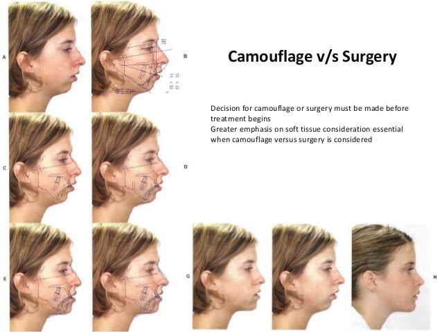 orthodontics for orthognathic surgery Orthognathic surgery is known as surgical orthodontics is a surgical procedure  to correct jaw deformities by adjusting the position or length of the jaw oral and.