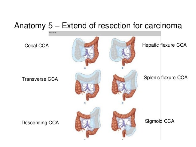 Surgical Resections And Staging Of Colorectal Carcinoma