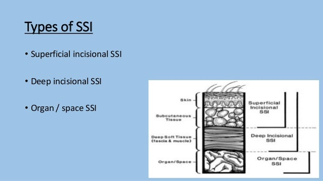 Surgical site infection Slide 3