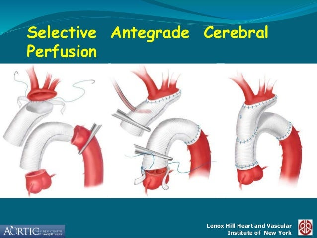 surgical treatment for aortic arch aneurysms