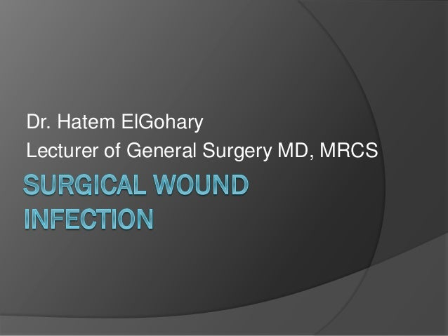 Dr. Hatem ElGohary Lecturer of General Surgery MD, MRCS