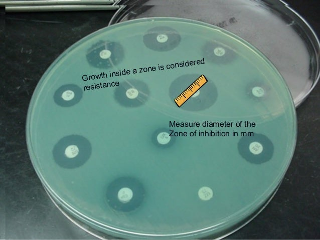 Susceptibility Testing Review