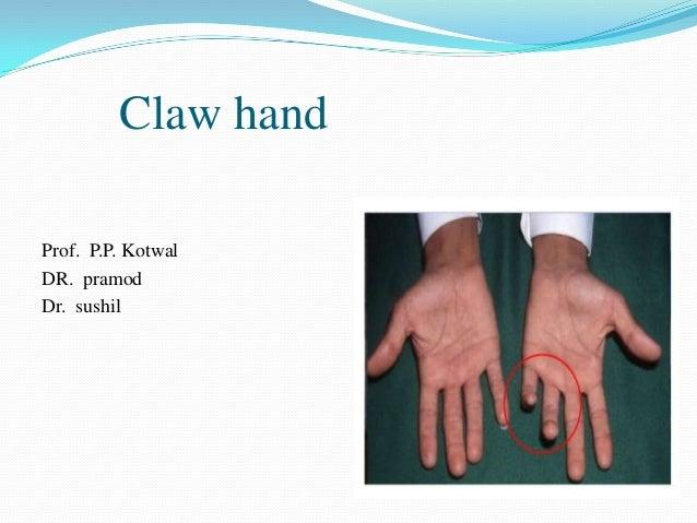 Claw handProf. P.P. KotwalDR. pramodDr. sushil