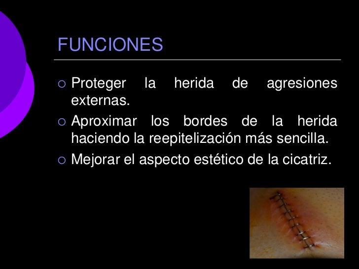 FUNCIONES   Proteger la herida de agresiones    externas.   Aproximar los bordes de la herida    haciendo la reepiteliza...