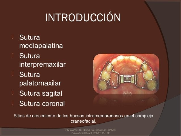 INTRODUCCIÓN   Sutura    mediapalatina   Sutura    interpremaxilar   Sutura    palatomaxilar   Sutura sagital   Sutur...