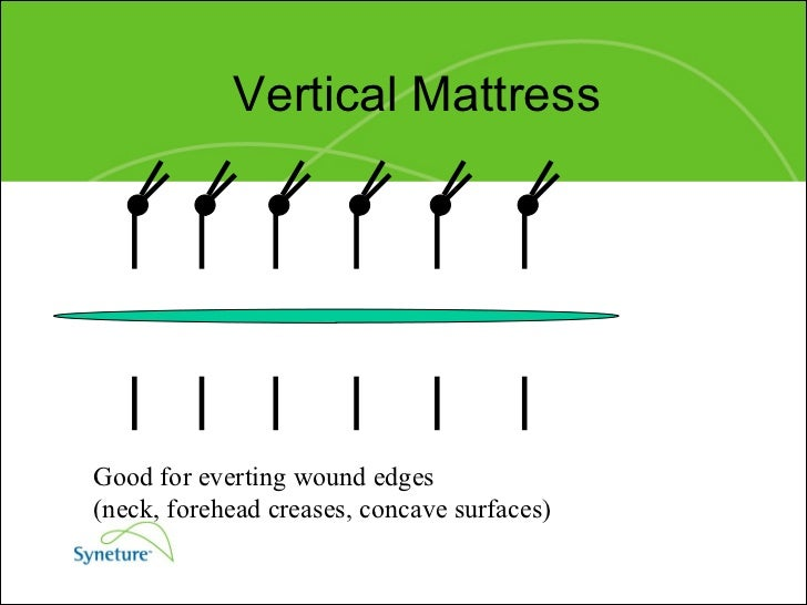 Horizontal Mattress Stitch