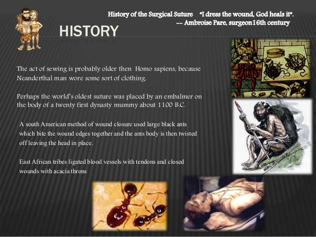 """HISTORY History of the Surgical Suture """"I dress the wound, God heals it"""". -- Ambroise Pare, surgeon16th century The act of..."""