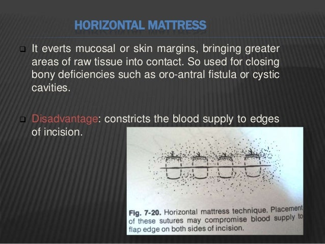 CONTINUOUS SUBCUTICULAR SUTURE Continuous short lateral stitches are taken beneath the epithelial layer of the skin. The e...