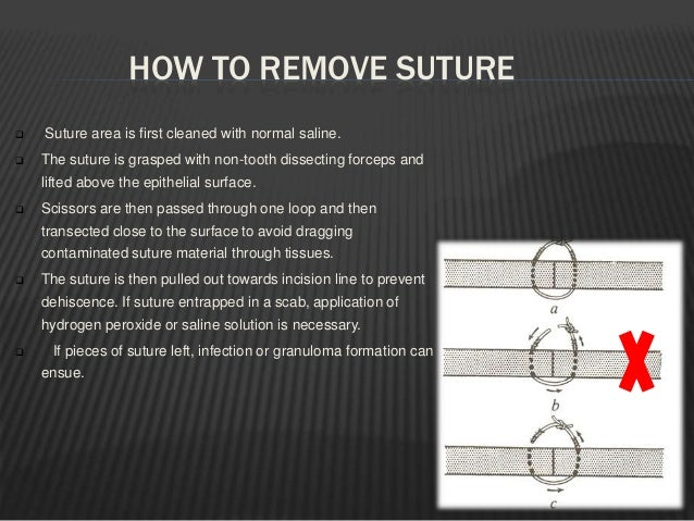 Surgical staples:  Used for skin closure .  Made up of SS.  They are placed uniformly to span the incision line.  They...